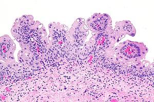 papilloma urothelialis neoplazma)