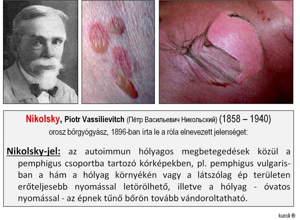 papillomatosis és bőr)