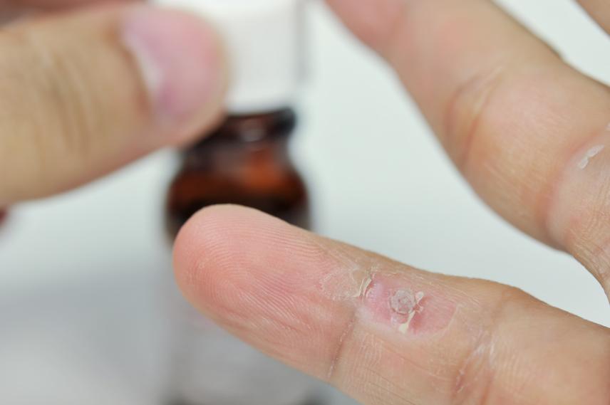 rák legagresszívebb típusa milyen gyógyszerekkel tisztítsa meg a paraziták testét