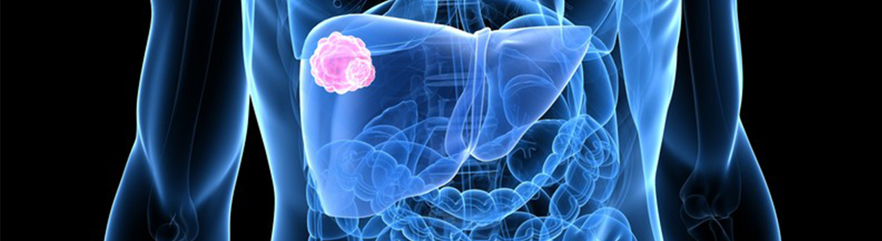 vestibularis papillomatosis vs herpesz