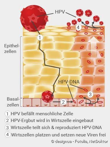 Pereselenec : HPV-Behandlung   Alles über eine wirksame Behandlung von HPV (Humanes Papillomavirus)