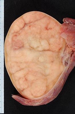 a hashártya rák terjedése