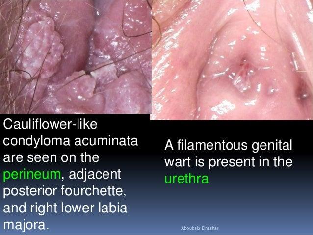 papilloma condyloma kezelésének módszerei