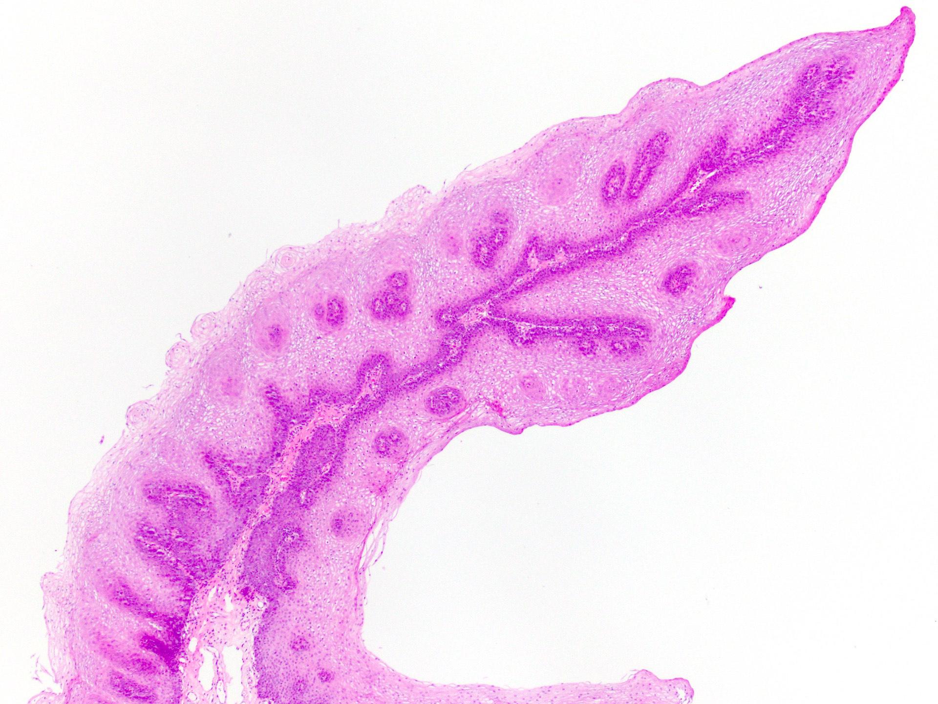 a palatális oszlop papilloma