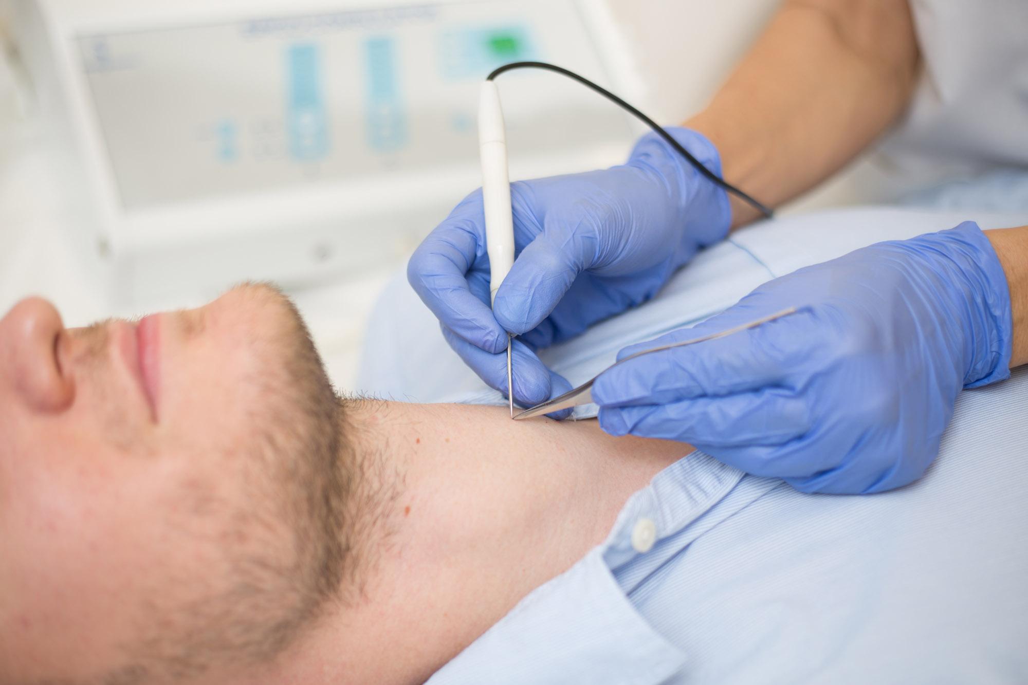 condyloma elektrokoaguláció hpv impfung jungen sinnvoll