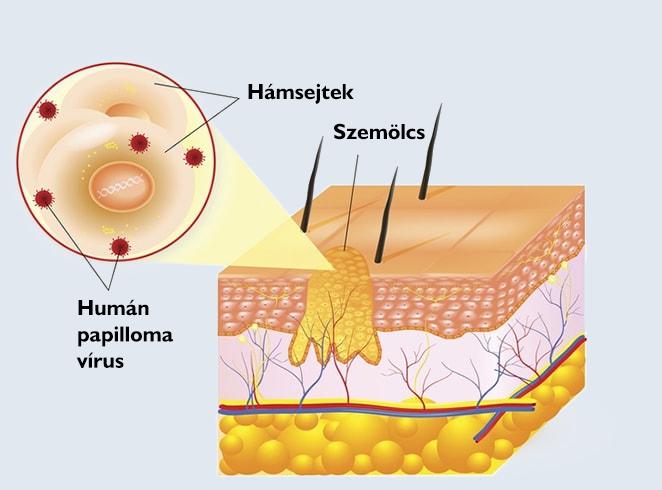 Nemi betegségek kivizsgálása, kezelése - Urológiai Központ