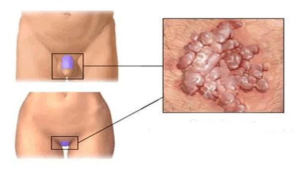 papillomavírus fertőzés elváltozása)