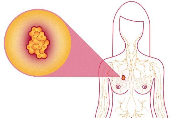 Az elsődleges daganat - jó- és rosszindulatú daganatok | doras.hu