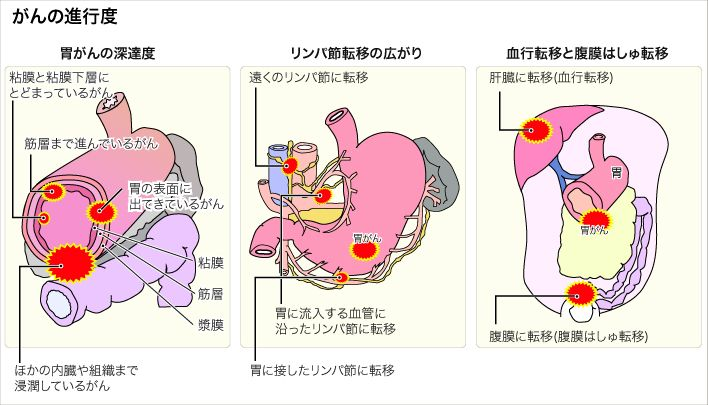 A gyomorrák molekuláris diagnosztikája — Molekuláris Diagnosztikával a daganatok ellen