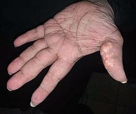 papilloma cutis adalah)