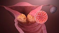 hpv vírus smittar
