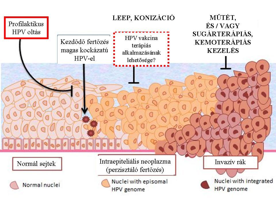 hpv magas kockázatú DNS pozitív)