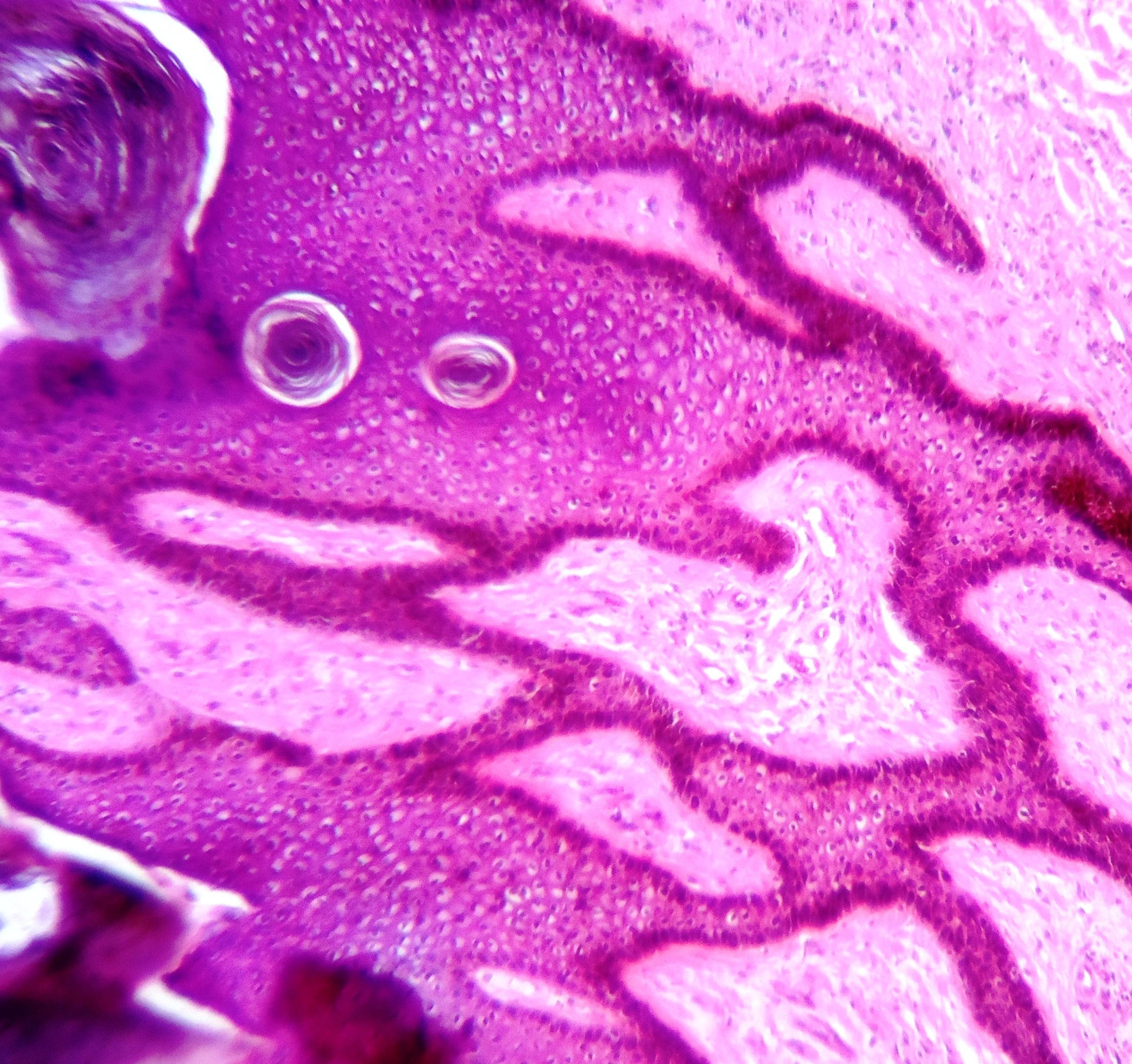 condyloma patológia
