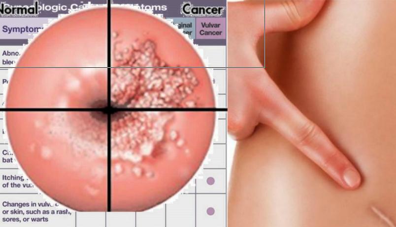 papillomavírus vulva kezelés