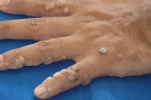 Vírusok a bőrben