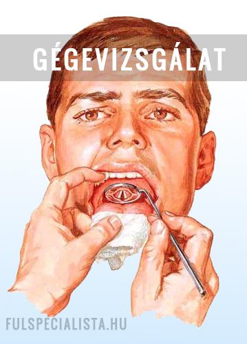 szarvasmarha papillomatosis tünetei papilloma vírus mellékhatásai