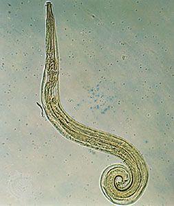 enterobius vermicularis pinworm)