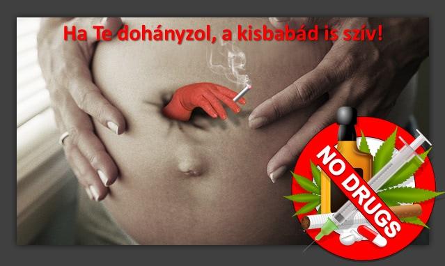 vestibularis papillomatosis és terhesség