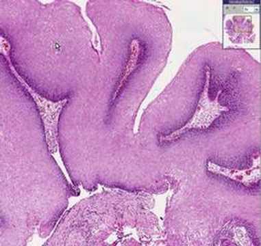 Enterobius vermicularis kingdom, A Teenager Overcomes Testicular Cancer hpv immunisation nhs