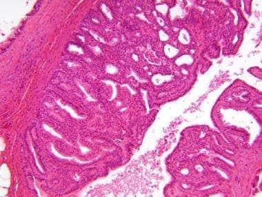 intraductalis papilloma kezelés medscape