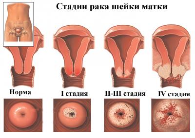 Hogyan kell kezelni az emberi test papillómáit