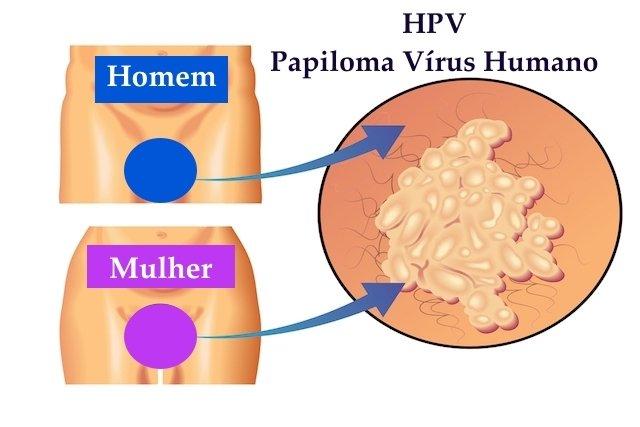 hpv viren medicamente)