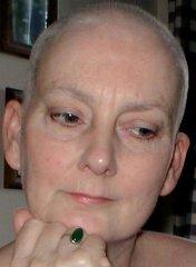 hasnyálmirigyrák daganat hpv 16 és a rák kockázata