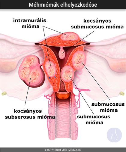 paraziták és mióma kezelése