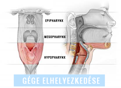 gége papillomatosis okozza)