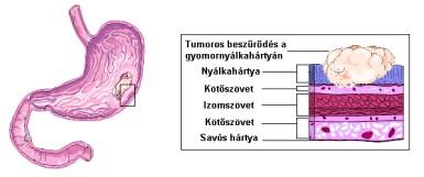 a gyomorrák túlélési aránya)