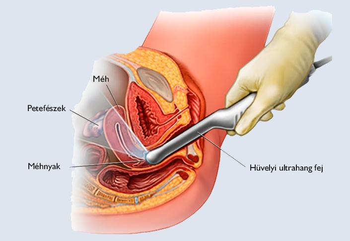 Hüvelyi problémák kezelése - Nőgyógyászati Központ