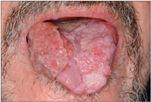 a humán papillomavírus tünetei nőknél