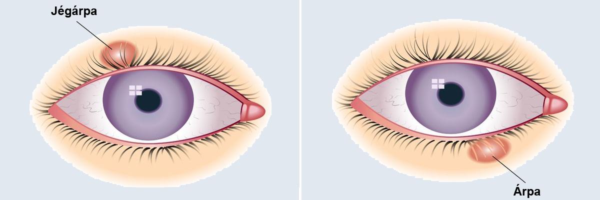 a szemhéjon lévő papilloma okozza a szemet