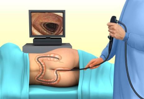A colitis ulcerosa diagnózisa