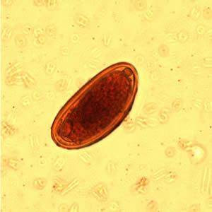 Enterobiosis perm