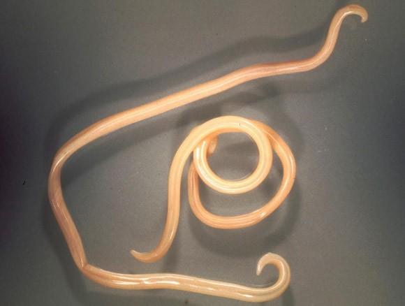galandféreg morfológia gyulladt papilloma mit kell tenni