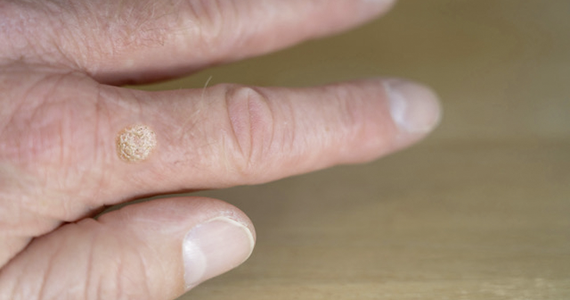 Hpv szemolcs nemi szerven, Enterobiasis kezelese
