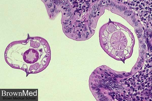 enterobius vermicularis haha)