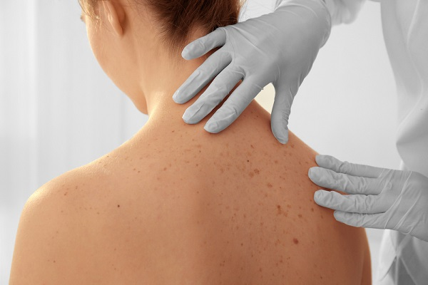 Mit mutat a 4. fázisú melanoma tünetei? | Wofulo