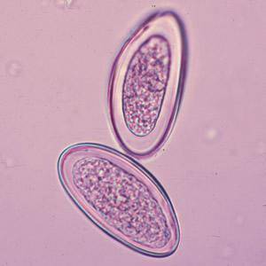 enterobius paraziták)