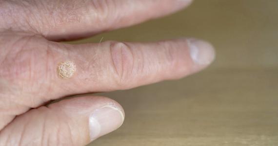 papillomavírus warzen entfernen