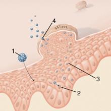 májrák szarkóma bolhák és férgek komplex kezelése