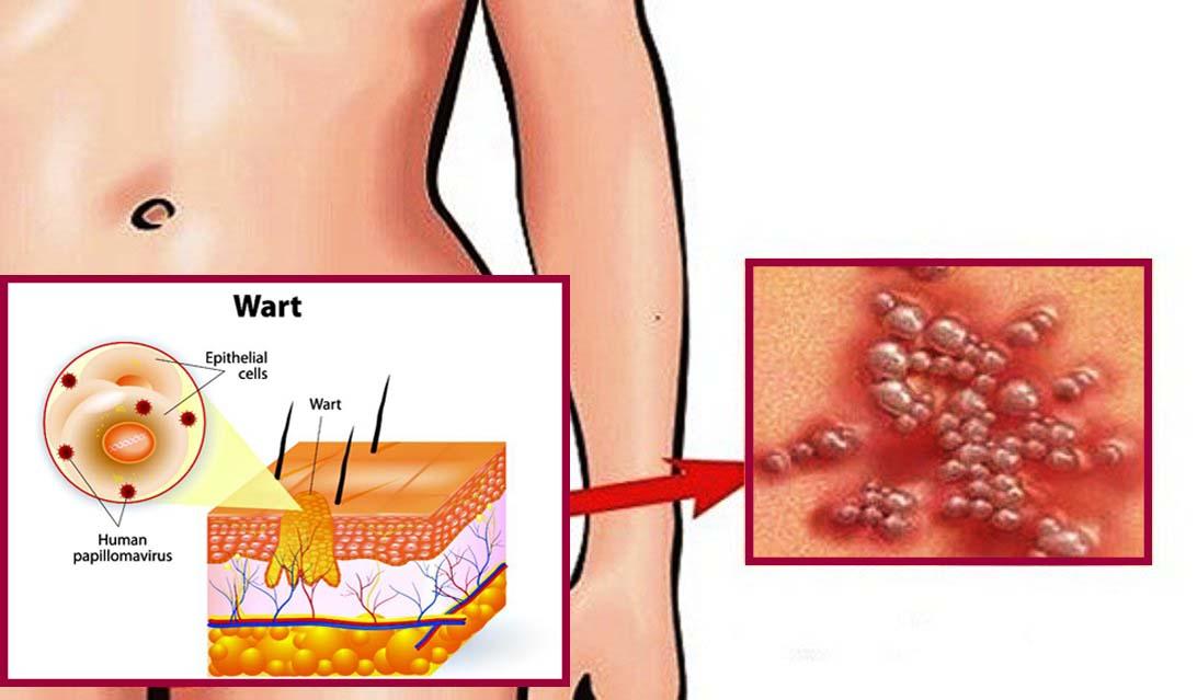hpv vírus a torokban