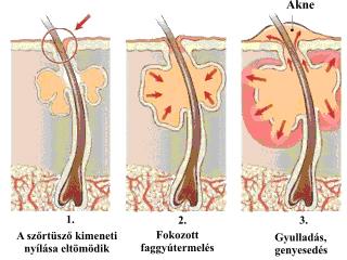 hogyan lehet véglegesen eltávolítani a pattanásokat a helmintikus betegségek listája