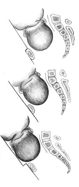 a nyaki csecsemőmirigy reprodukciója