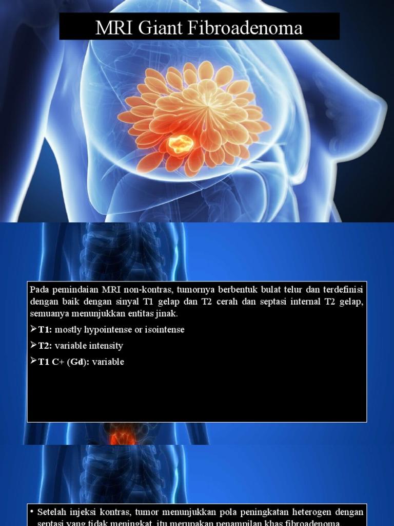 Rövid sebészeti diagnosztika