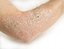 bőr papillomavírus)