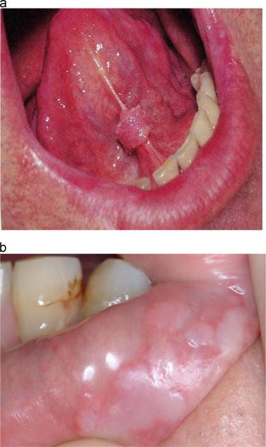 HPV: újonnan felismert kockázati tényező a fej-nyaki rákok kialakulásában | doras.hu