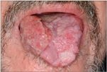 papillomavírus hpv fertőzés