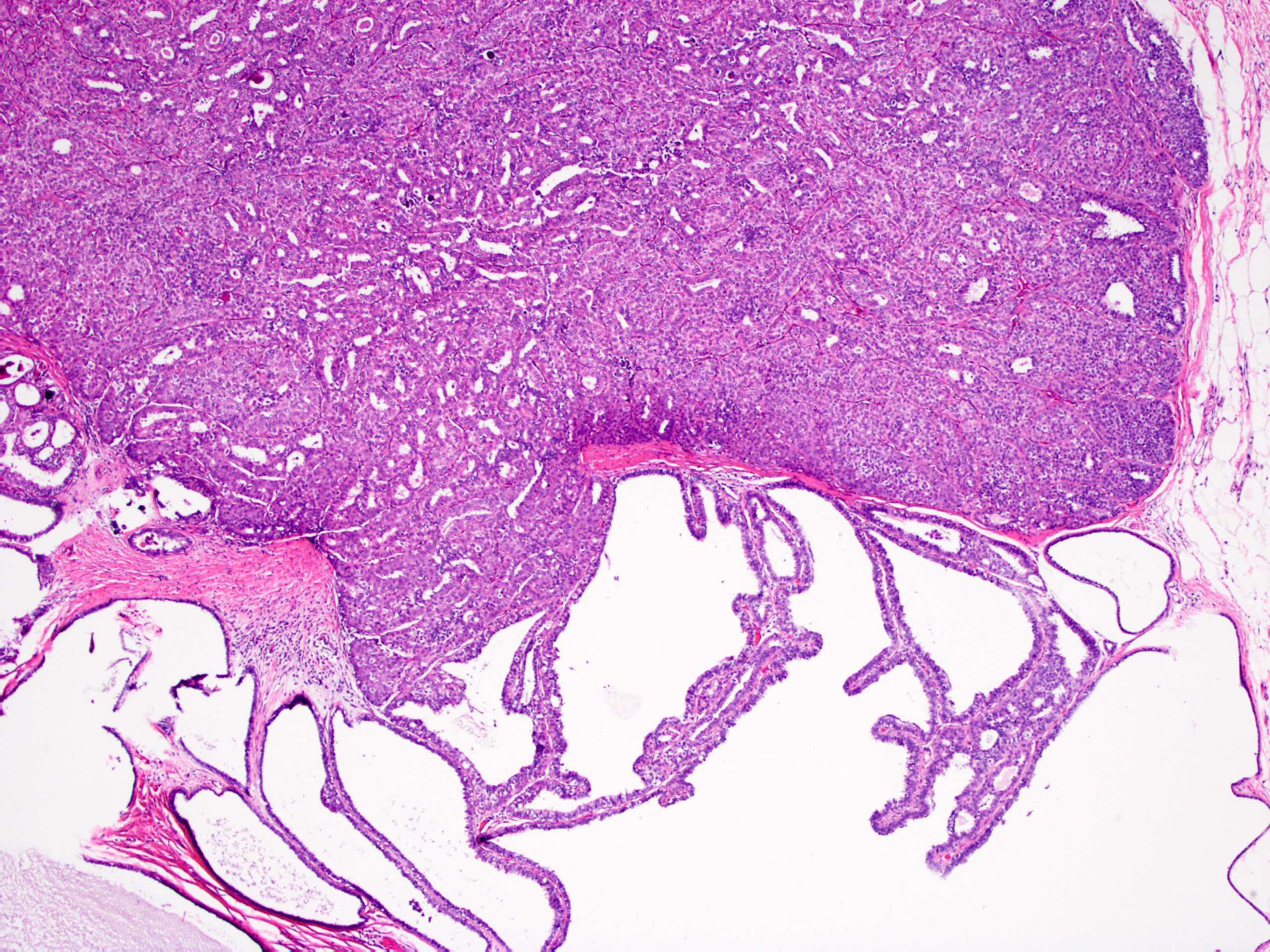 Az emlőmirigy intraduktális papilloma, típusai, diagnózisa és kezelése